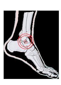 artros i fotled